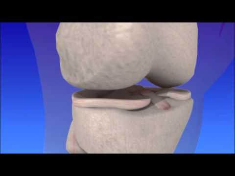 ACL Tear and Reconstruction - Knee Ligament Injury