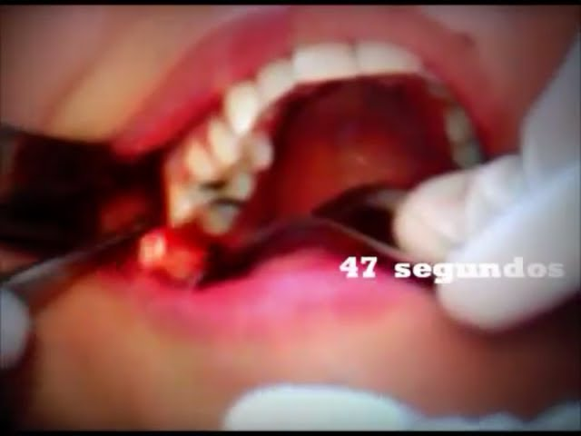 EXTRACCIÓN DENTAL EN 1 MINUTO