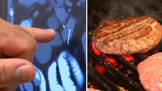 How a Burger From the Grill Could Land You in the Emergency Room