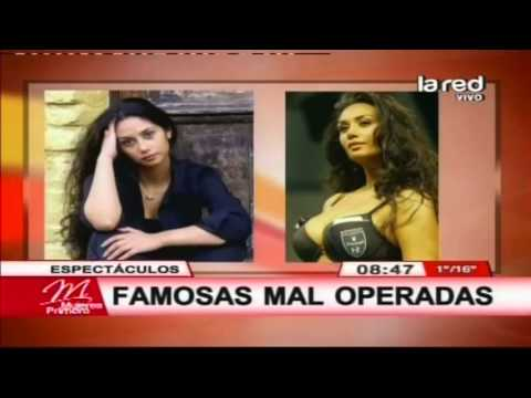 FAMOSAS QUE SE OPERARON LAS CHICHIS