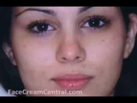 Acne No More (tm): Top CB Acne Cure review