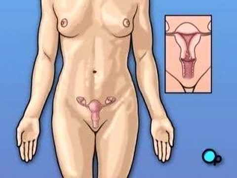 Myomectomy, Vagina Fibroid Surgery, Health PreOp Patient Education