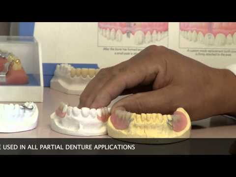 Types of Partial Dentures - Huntington Beach CA