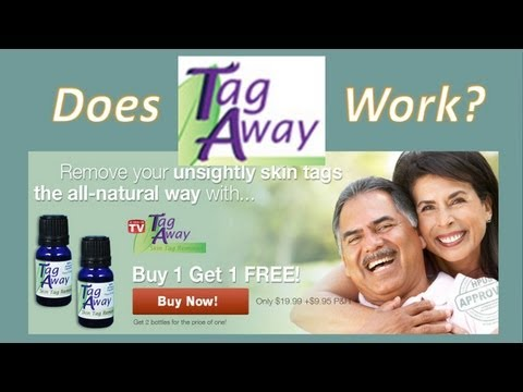 Tag Away Reviews: Does Tag Away Work?
