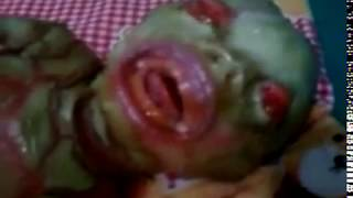 nur eine seltene Mutation oder steckt maher dahinter ?reptiloid Baby was born in Nepal