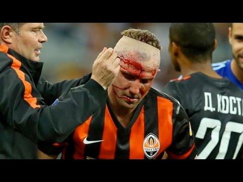 Страшная травма Кучера | Kucher's horror injury