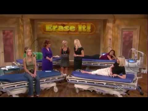The View with Dr. Day - VBeam Laser (Spider Veins/Rosacea)