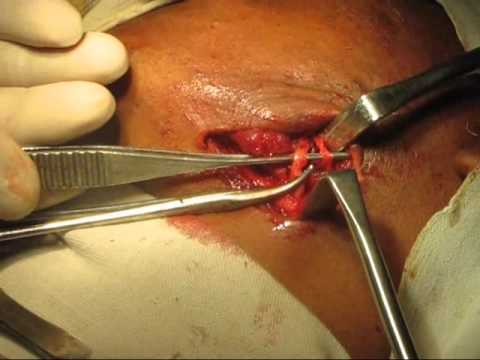 lower jaw fracture or mandibular fracture bone plating.wmv