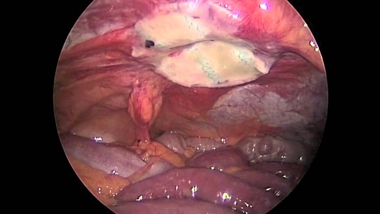 Umbilical Hernia Repair Proceed Ventral Patch 50 Days Post