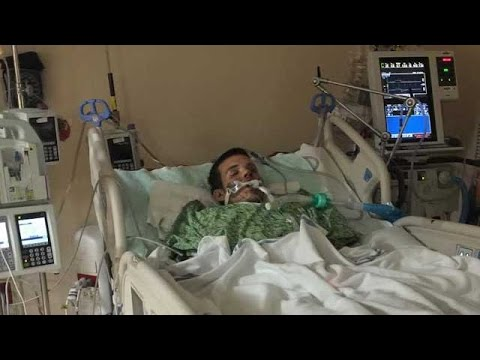 E-cigarette explodes in Naples man's face, warns of dangers