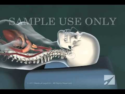 Cervical Chiropractic Adjustment