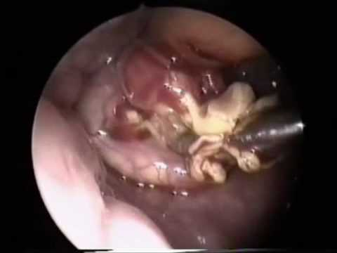 Vallecular Cyst Excision with Microdebrider