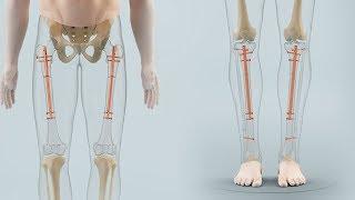 Limb lengthening with the BETZBONE® medullary nail (ENGLISH)