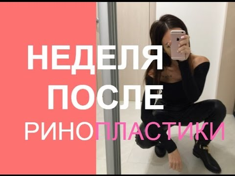 Ринопластика | Неделя После Операции Пластика Носа ❤ Анастасия Лисова