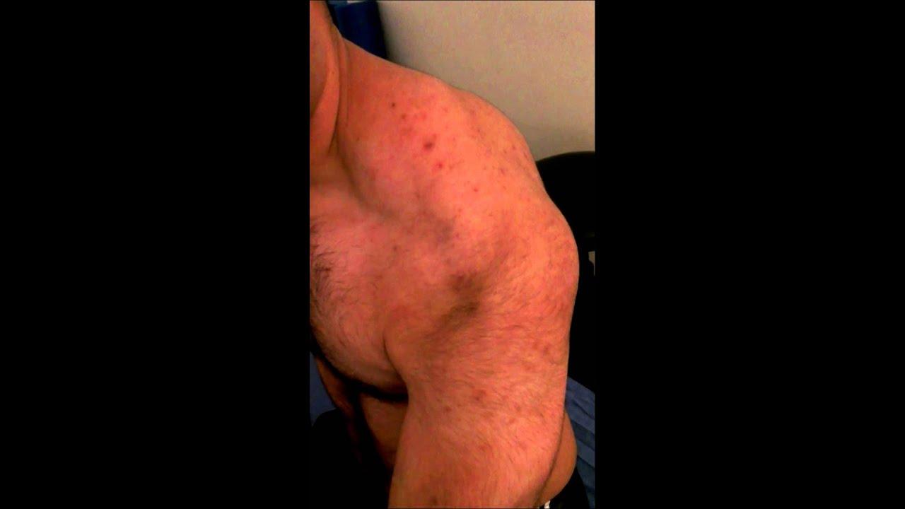 Posterior Shoulder Dislocations Posterior Shoulder Dislocation