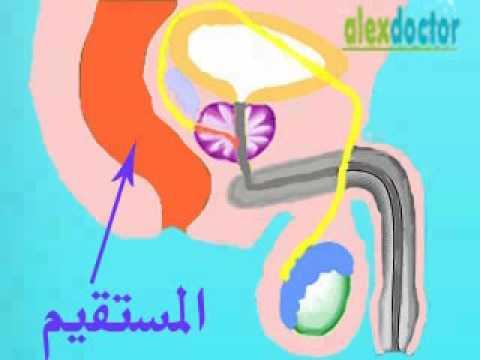 السائل المنوى semen & sperms