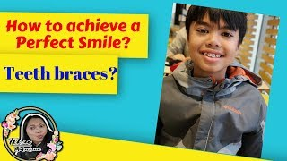 How to achieve a perfect smile l first step of Braces l Brackets.