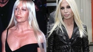 13 Shocking Celebrity Plastic Surgery Disasters