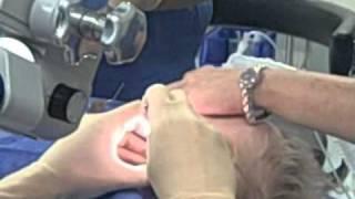 Ear Tube Surgery VideoMp4Mp3.Com