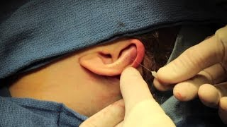 Operate Now! - Ear Surgery (Stapedectomy)