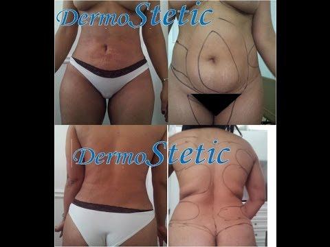cirugia plastica dermostetic laser clinic