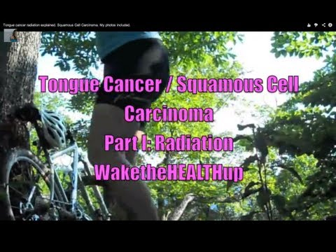 Tongue cancer radiation explained. Squamous Cell Carcinoma. My photos included.