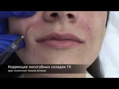 Коррекция носогубных складок ГК