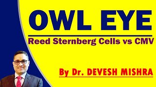 Owl Eye , Reed sternberg cells vs CMV Dr. Devesh Mishra
