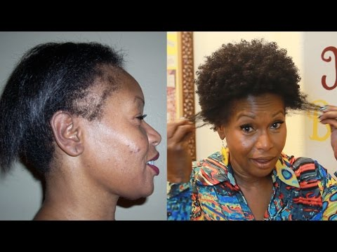How I Repaired My Thinning Edges
