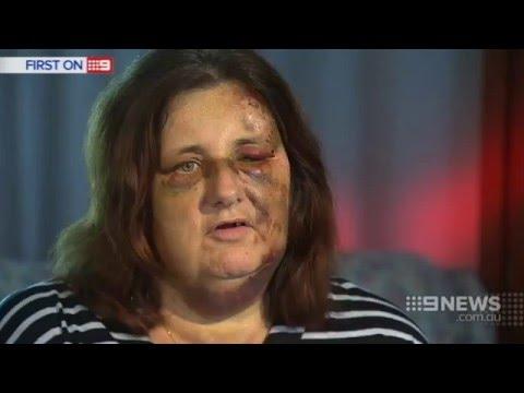 Snake Bite Horror | 9 News Perth