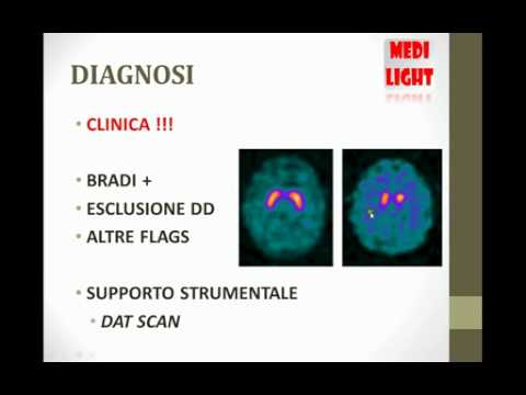 Lezioni Medicina – LA MALATTIA DI PARKINSON [Medi Light ITA]