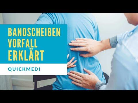 Bandscheibenvorfall in 3 Minuten einfach erklärt - Symptome, Diagnose und Therapie | QuickMedi
