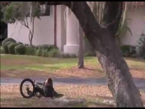 Kid Breaks Leg Jumping Over Tree