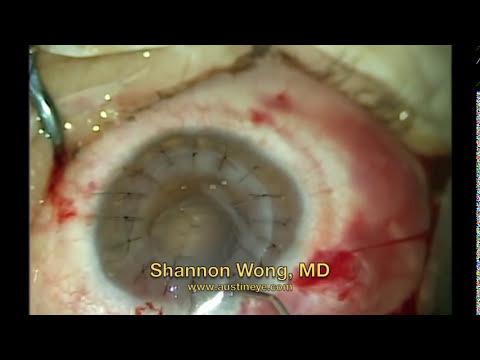 Cornea transplantation surgery.  Shannon Wong, MD 10-2013.