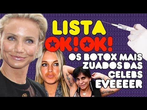 Top 6 Celebs Com Os Botox Mais Zuados Eveeeer video