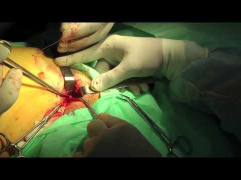 Operacje żylaków