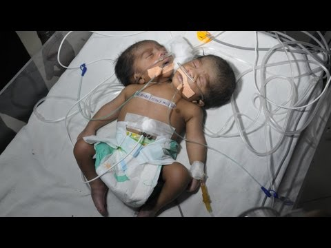 Two Headed Baby: Conjoined Twin Boys In India