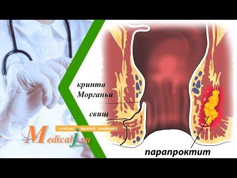 0 - Парапроктит лікування народними засобами