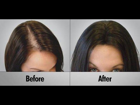 وصفة البصل فعالة لإنبات فراغات الشعر و علاج الصلع
