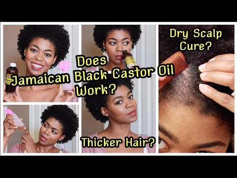 JBCO For A Healthy Scalp & Thicker Hair- Does It Work? - Review + Hair Update - 4C Natural Hair