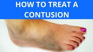 How To Treat a Contusion