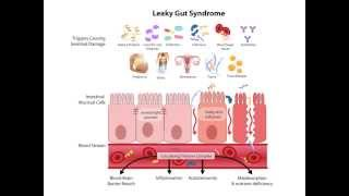 The Effects of Grains, Legumes and Dairy on Your Body