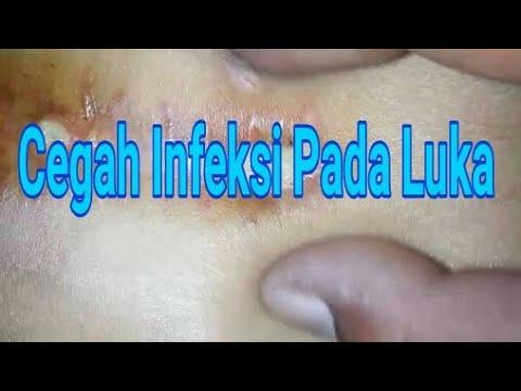 Video obat nyeri infeksi luka