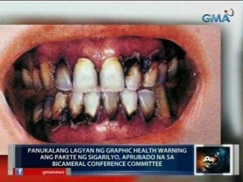 Saksi: Panukalang lagyan ng graphic health warning ang pakete ng sigarilyo, aprubado na sa bicam