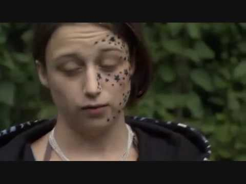 [SUBTITLED] Girl wakes up with 56 stars tattooed on her face