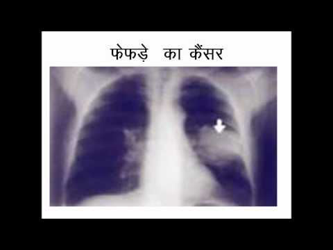 Cancer awareness hindi