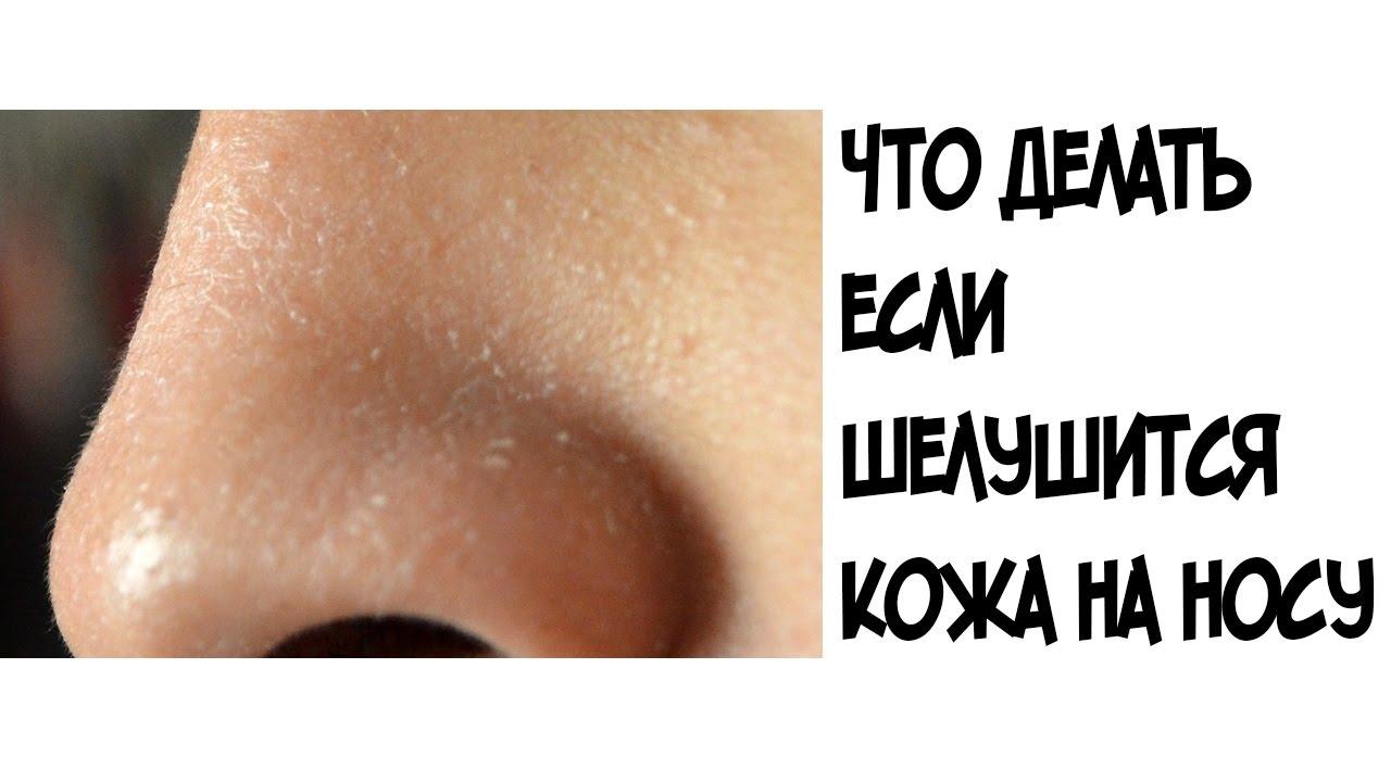 Почему шелушится кожа на лице на носу