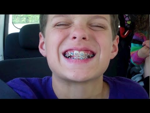 Caleb Gets Braces (WK 121.3)