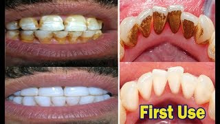 In just 2 Minutes - Turn Yellow Teeth to Pearl White With This Kitchen Ingredients amazing Teeth