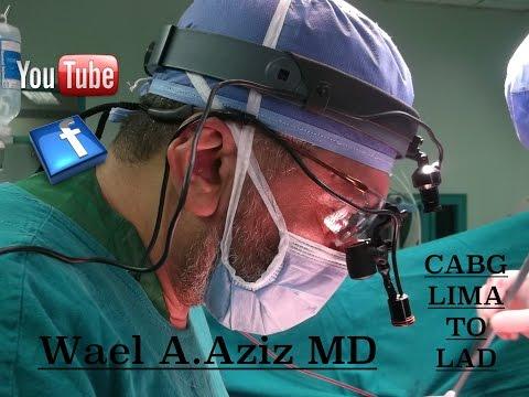 Open Heart Surgery Cabg X4 Lima To Lad , Wael Abdul Aziz Md. video
